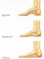 Pronated versus flat feet - The Body Series
